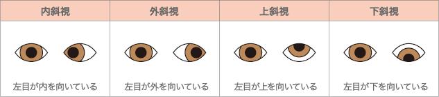 右目を正常な位置とした斜視の種類
