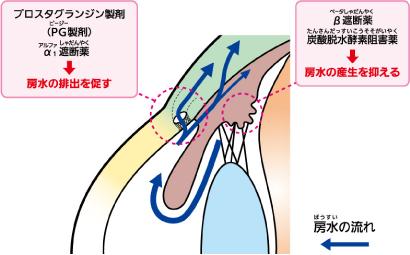 緑内障点眼薬の主な種類と働き