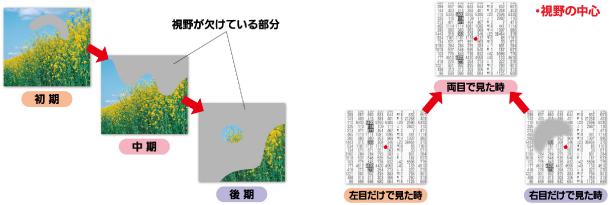 視野の変化(右目)