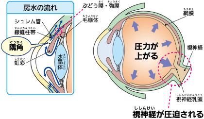 房水と眼圧の関係