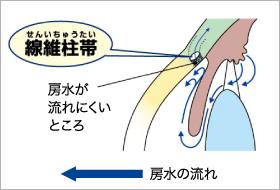 閉塞隅角緑内障